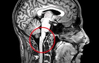 NUCCA MRI